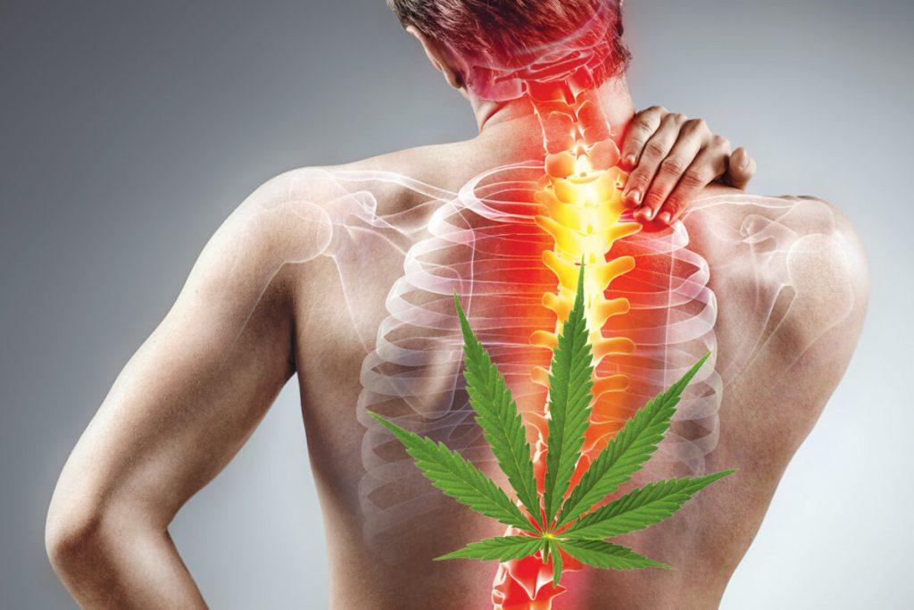 Medical Cannabis as a Back Pain Treatment