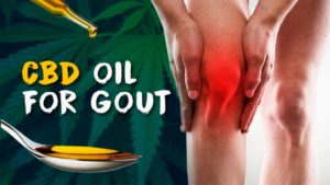 How CBD Could Help with Gout Pain?