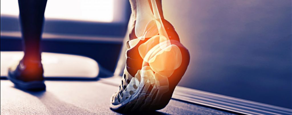 alleviate heel pain