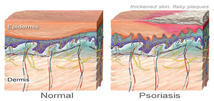 psoriasis vs normal